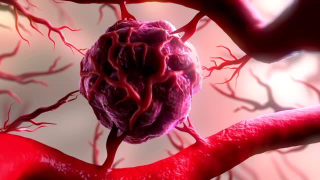 Tumour angiogenesis