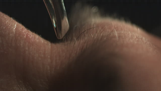 Tweezers pluck hair from Caucasian man's face (slow motion)