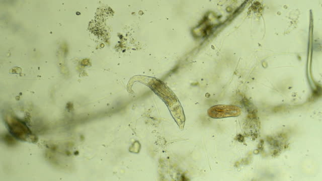 Two micro organisms - zoom in