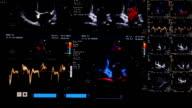 Ultrasound (HD)