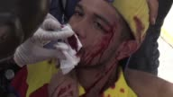 Violinist and opposition demonstrator Wuilly Arteaga was injured during clashes as Venezuelans marched to the Supreme Court in Caracas on Saturday to...