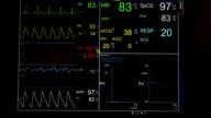 Vital signs monitor (HD)