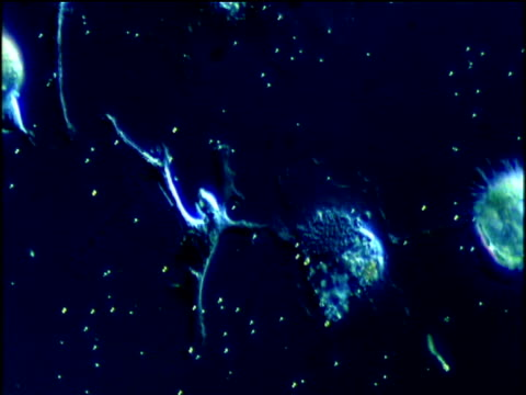 White blood cells attack cancerous cells blue filter