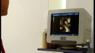 Woman is first to give birth after using transplanted womb T12090317 London Various of monitor showing three dimensional image of baby created using...