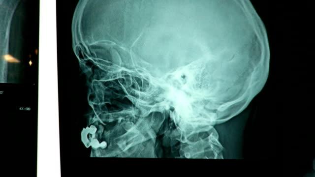 X-Ray Image (HD)