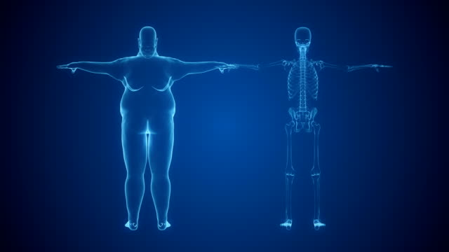 X-ray of Overweight Man and Skeleton