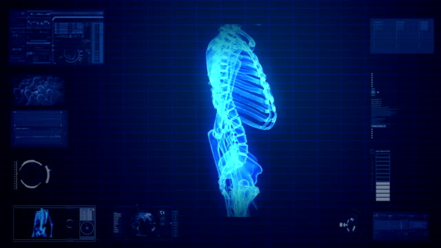 X-ray scan of human skeleton
