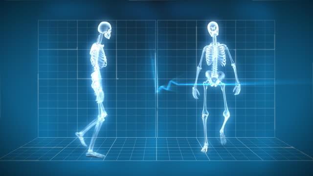 X-Ray Skeleton Walking