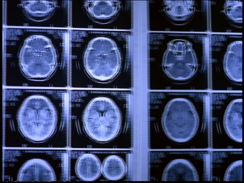 PAN X-rays of brains on wall / Brazil