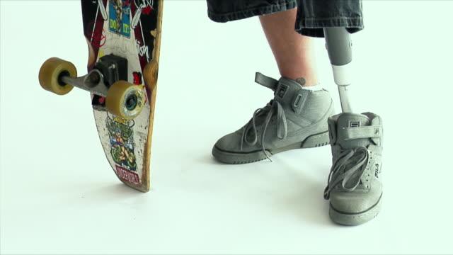 MS TU Young man with prosthetic leg holding skateboard / Wilmington, North Carolina, USA