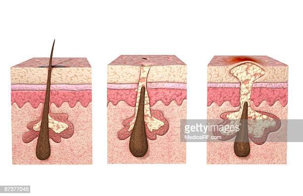 illustrazioni stock, clip art, cartoni animati e icone di tendenza di acne - images
