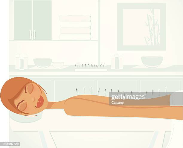 acupuncture (light-skinned) - acupuncture stock illustrations, clip art, cartoons, & icons