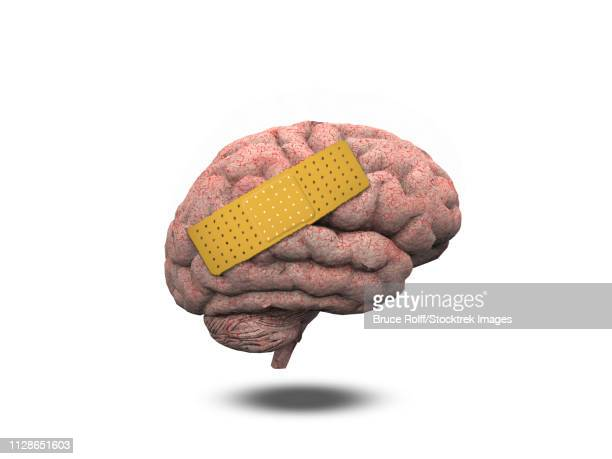 adhesive plaster on wounded brain - anatomical model stock illustrations, clip art, cartoons, & icons