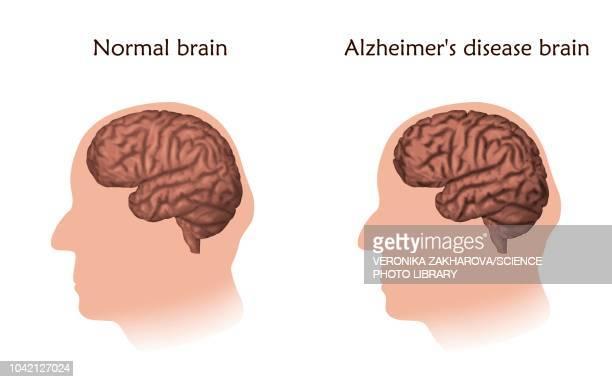 stockillustraties, clipart, cartoons en iconen met alzheimer's disease, illustration - ziekte van alzheimer