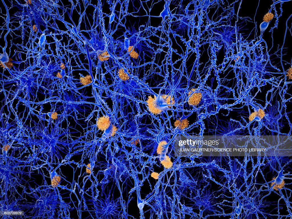 Alzheimers disease, illustration : Stock Illustration