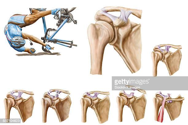 anatomy of acromioclavicular joint rupture and displacement. - neuropathy stock illustrations