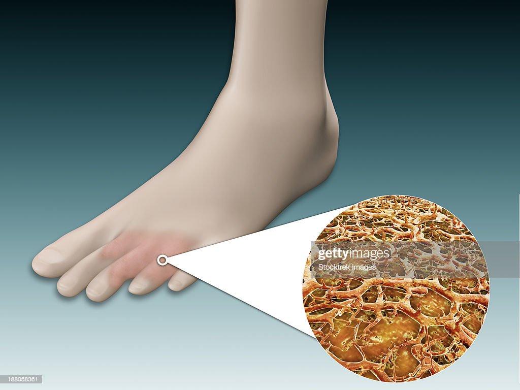 Anatomy Of Foot Fungus With Microscopic Closeup Stock Illustration