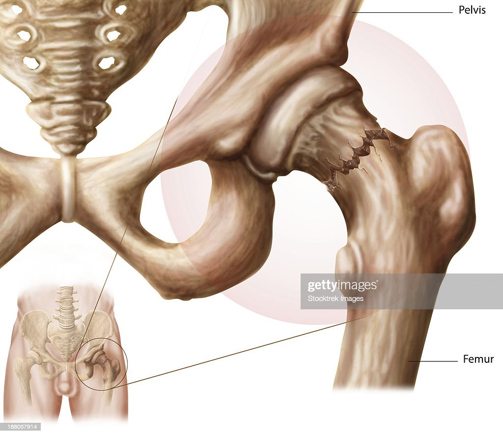 Anatomy Of Hip Fracture Stock Illustration Getty Images