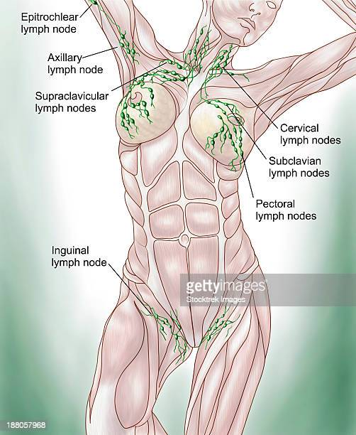 Lymph Node Stock Illustrations And Cartoons