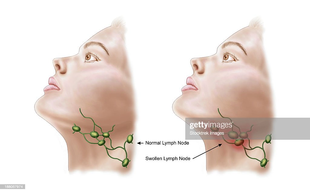 Anatomy Of Swollen Lymph Nodes Stock Illustration | Getty Images