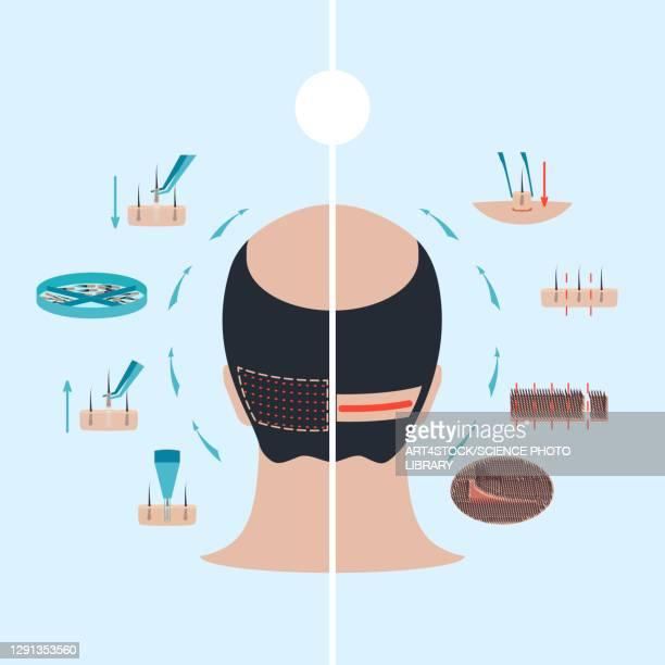 fue and fut comparison, illustration - human scalp stock illustrations