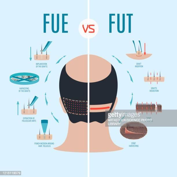 fue and fut hair loss treatments comparison, illustration - human scalp stock illustrations