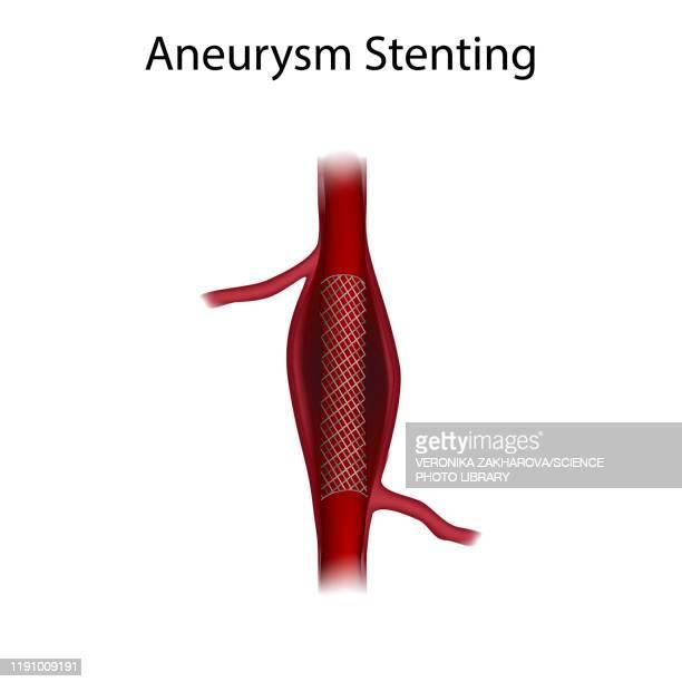 aneurysm repair with stenting, illustration - ステント点のイラスト素材/クリップアート素材/マンガ素材/アイコン素材