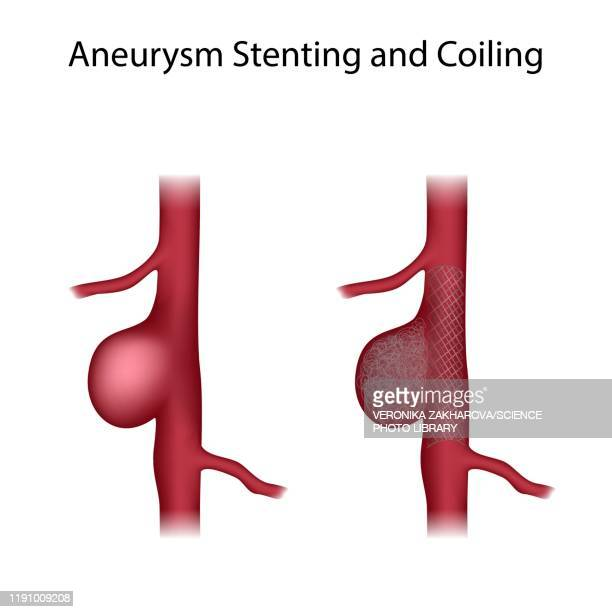 aneurysm stenting and coiling, illustration - anticipation stock illustrations