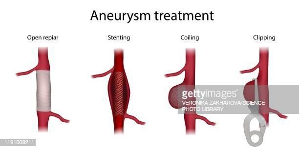 aneurysm treatment, illustration - ステント点のイラスト素材/クリップアート素材/マンガ素材/アイコン素材