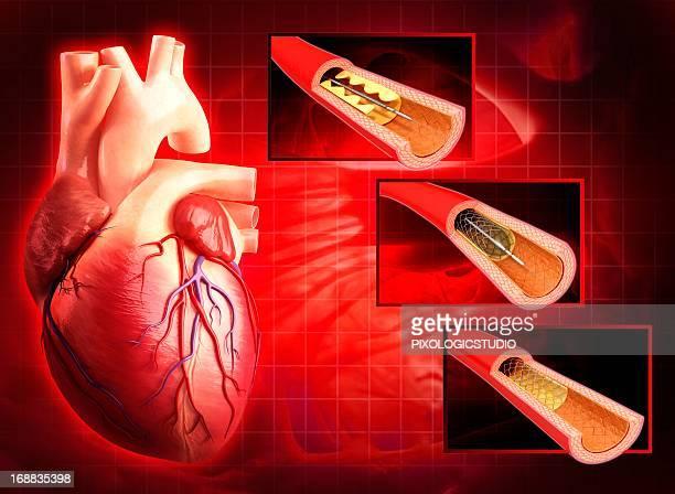 angioplasty, artwork - ステント点のイラスト素材/クリップアート素材/マンガ素材/アイコン素材