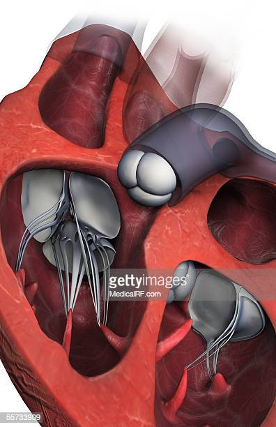 anterior close up view of a cross-section of the heart. - papillary muscle stock illustrations
