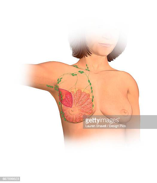 illustrazioni stock, clip art, cartoni animati e icone di tendenza di anterior view female anatomy showing breast tissue and muscle affected by a partial mastectomy - mastectomia