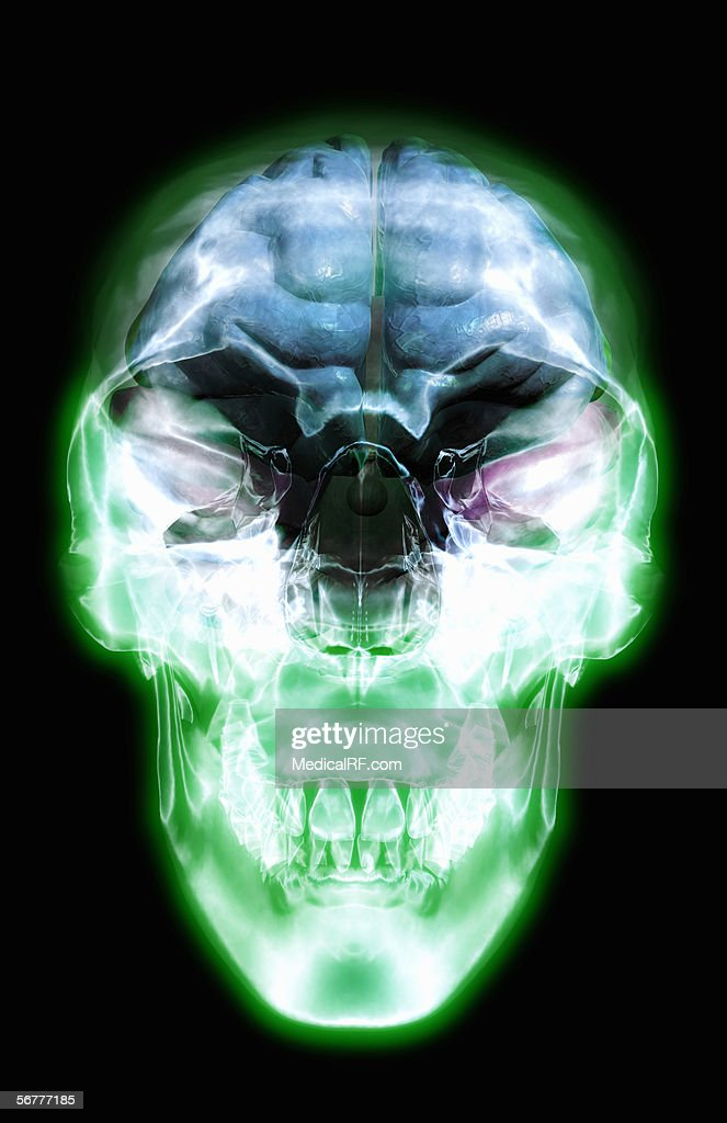 Anterior View Of An Xray Skull With An Overlay Of The Internal ...