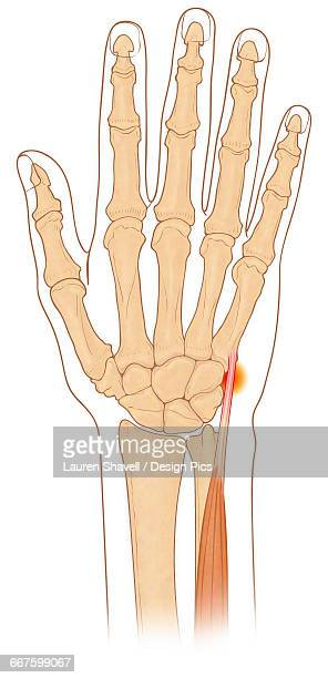 Anterior view of hand bones with inflamed extensor carpi ulnaris muscle