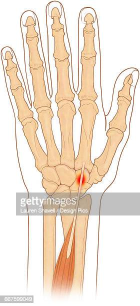 Anterior view of hand bones with inflammed extensor carpi radialis longus muscle
