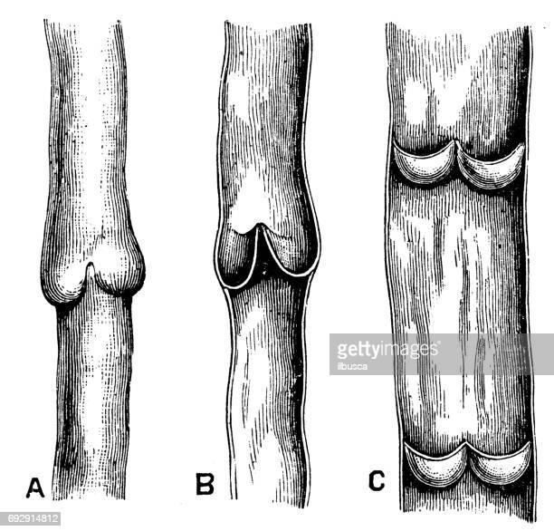 antique engraving illustration: vein valves - cardiopulmonary system stock illustrations, clip art, cartoons, & icons