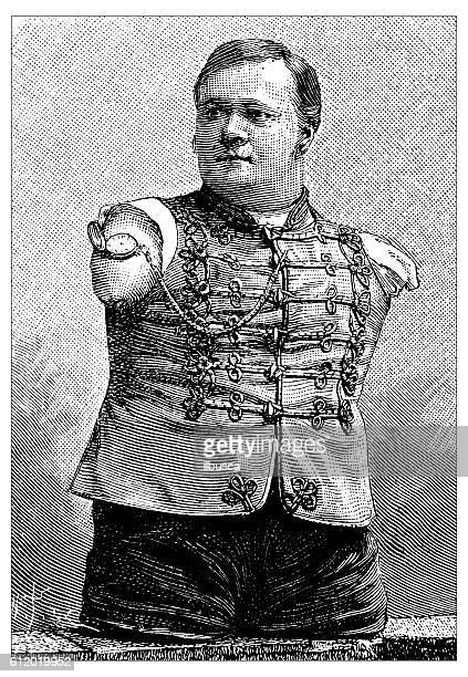Antique illustration of man without arms and legs portrait