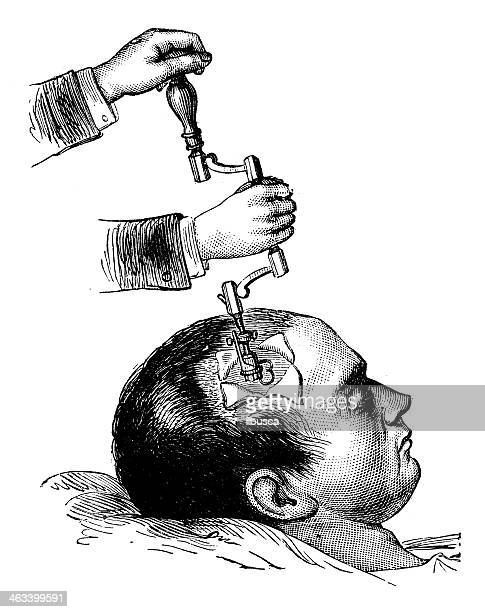 antique medical scientific illustration high-resolution: brain surgery - neurosurgery stock illustrations, clip art, cartoons, & icons