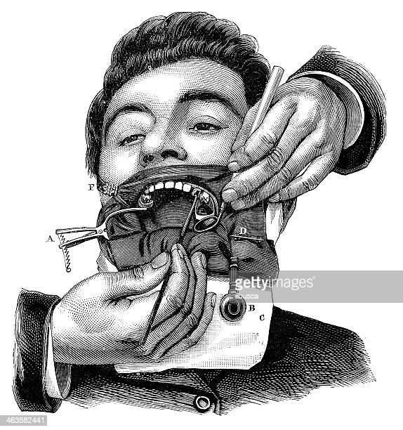 antique medical scientific illustration high-resolution: dentist - dental drill stock illustrations