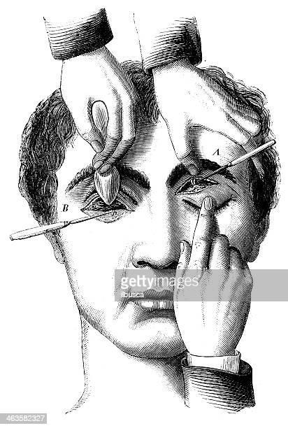 antique medical scientific illustration high-resolution: eye surgery - autopsy stock illustrations