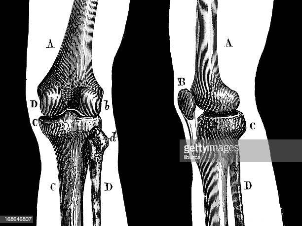 antique medical scientific illustration high-resolution: knee joint - human knee stock illustrations, clip art, cartoons, & icons