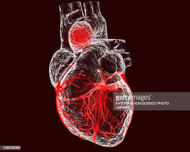 aortic aneurysm, illustration - sick stock illustrations, clip art, cartoons, & icons