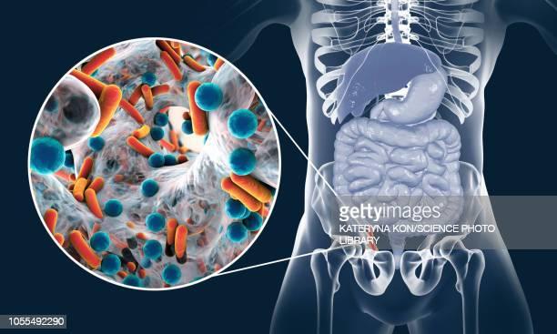 appendicitis, illustration - micro organism stock illustrations, clip art, cartoons, & icons