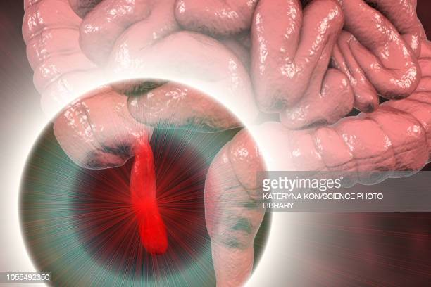 appendicitis, illustration - appendicitis stock illustrations