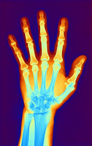 Arthritic Hand, X-ray Wall Art