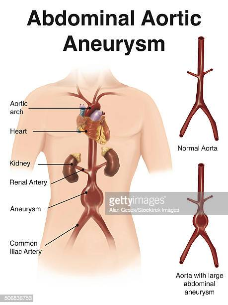 Artist depcition of abdominal aortic aneuryism (with labels).