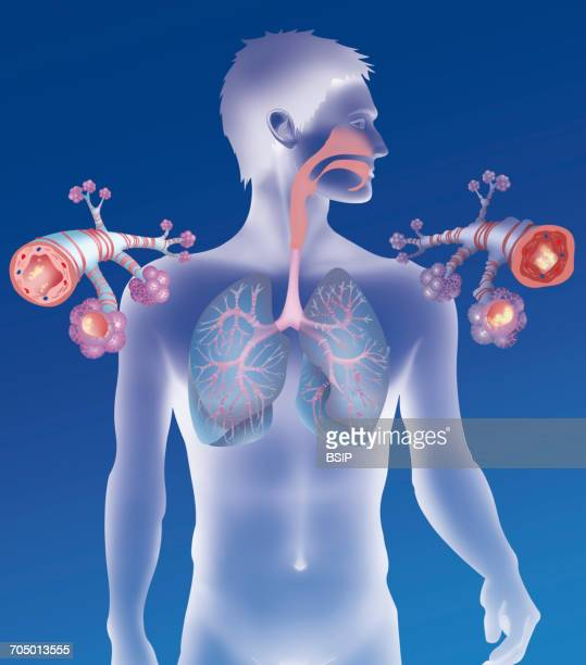 asthma, drawing - asthmatic stock illustrations