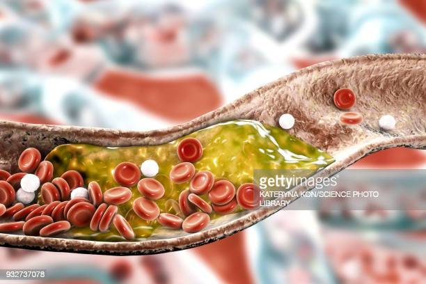atheromatous plaque in artery, illustration - artery stock illustrations
