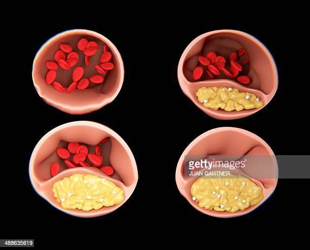 atherosclerosis, artwork - artery stock illustrations