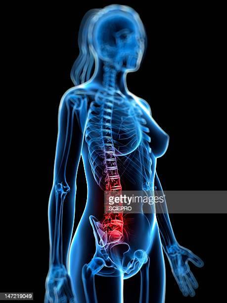 back pain, conceptual artwork - 下背部痛点のイラスト素材/クリップアート素材/マンガ素材/アイコン素材
